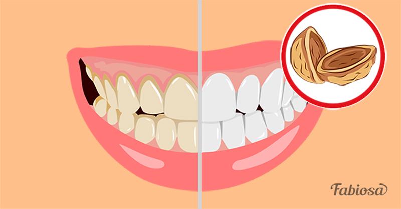 Доступное домашнее средство от зубного налета. Альтернатива чистке в клинике!