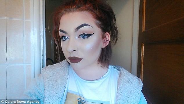 Чудеса макияжа: девушка с«кожей-чешуей» вдохновляет больных псориазом волшебными преображениями