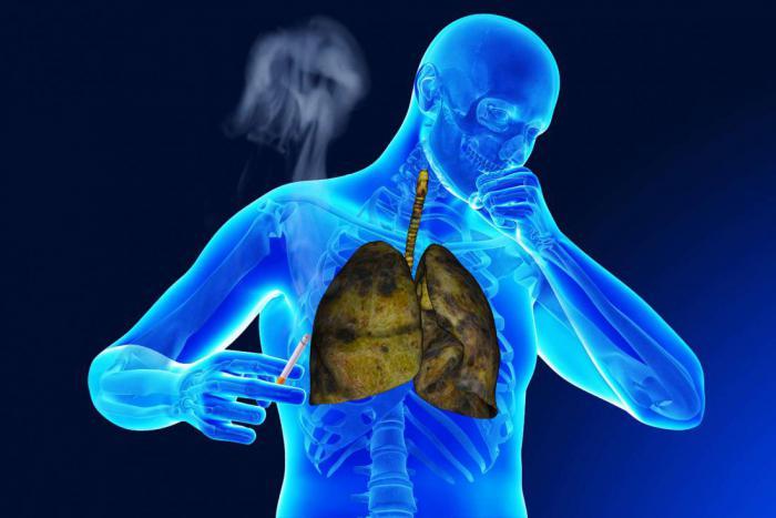 Какие признаки могут указывать на рак легких?