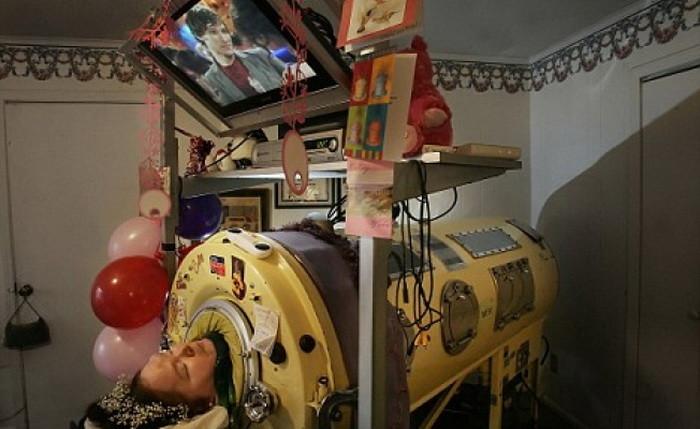 Жизнь в«танке»: женщина провела почти 60летваппарате вентиляции легких