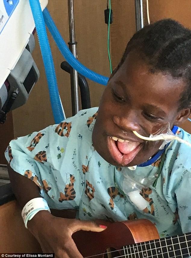 Врачи сумели удалить гигантскую опухоль изчелюсти 12-летней девочки