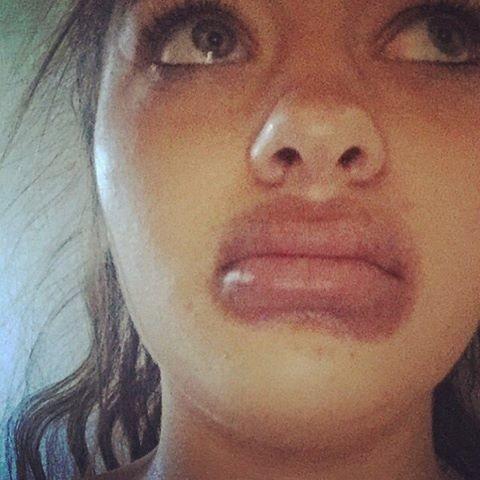 19-летняя ростовчанка попыталась увеличить губы пылесосом