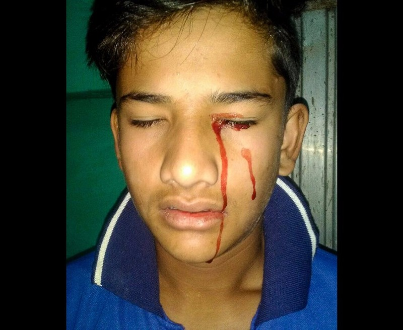Из-за страшной болезни уиндийского мальчика идёт кровь изглаз