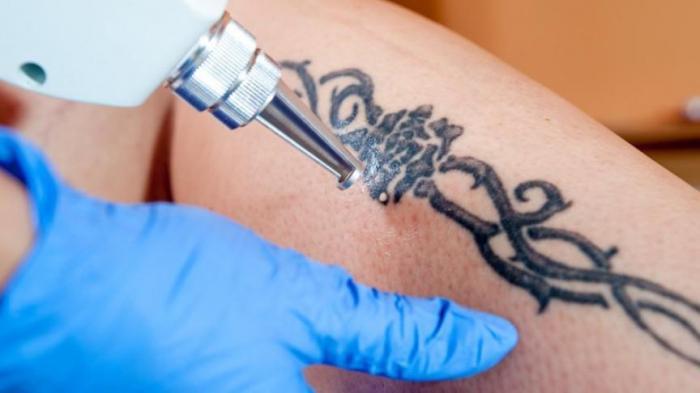 Все, что нужно знать об удалении тату