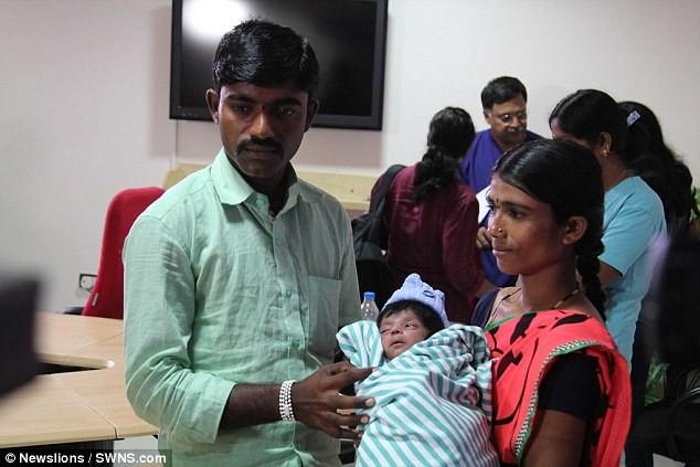 Шок: индийские врачи сделали операцию мальчику, родившемуся счетырьмя ногами!