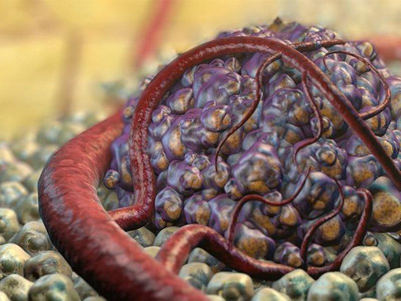Рак – это то, что наш организм предпринимает для выживания
