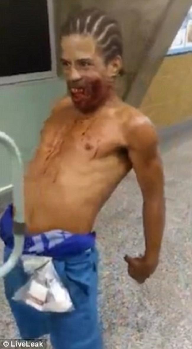 Жуткое происшествие вбразильском госпитале: раненый илиодержимый?