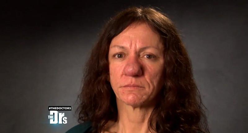 Из-за болезни носэтой женщины вырос доневероятных размеров