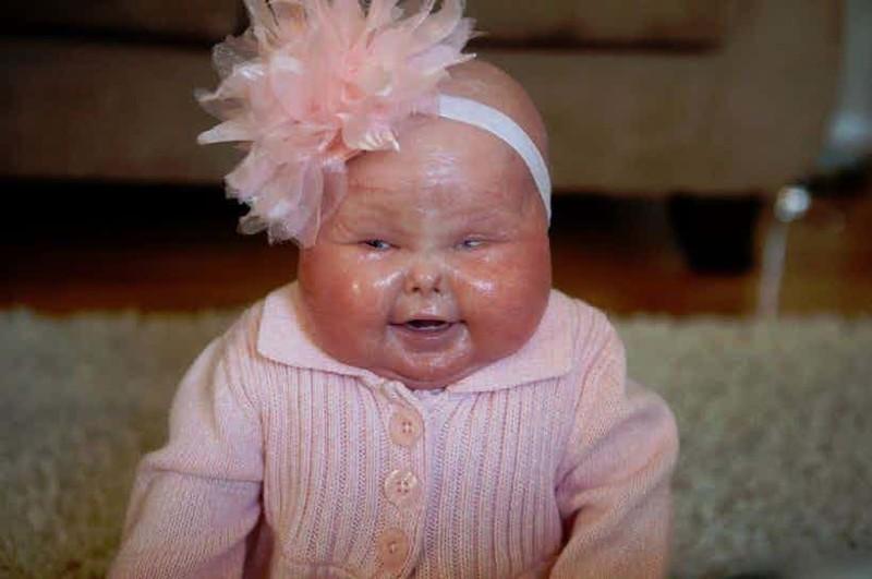 Дети, рожденные сневероятными генетическими дефектами