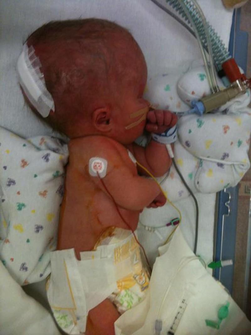 Помните мальчика, который родился почти безголовного мозга? Воткаконживёт теперь…