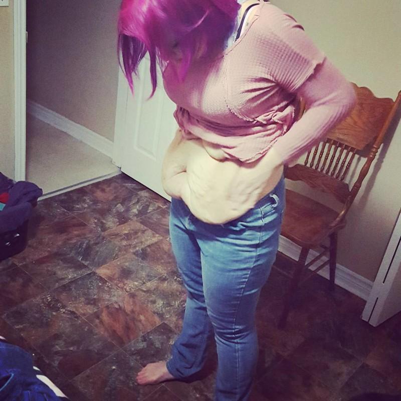 После потери 85кгэтаженщина осталась согромным количеством лишней кожи, ионанепостеснялась еёпоказать