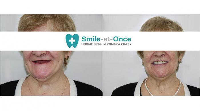 Новые зубы за 3 дня – базальная имплантация нового поколения