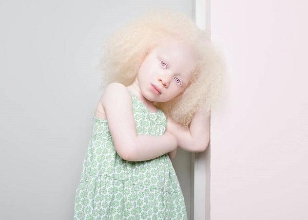 Этот нежный фотопроект об удивительных альбиносах заставит тебя по-другому взглянуть на «особенных».
