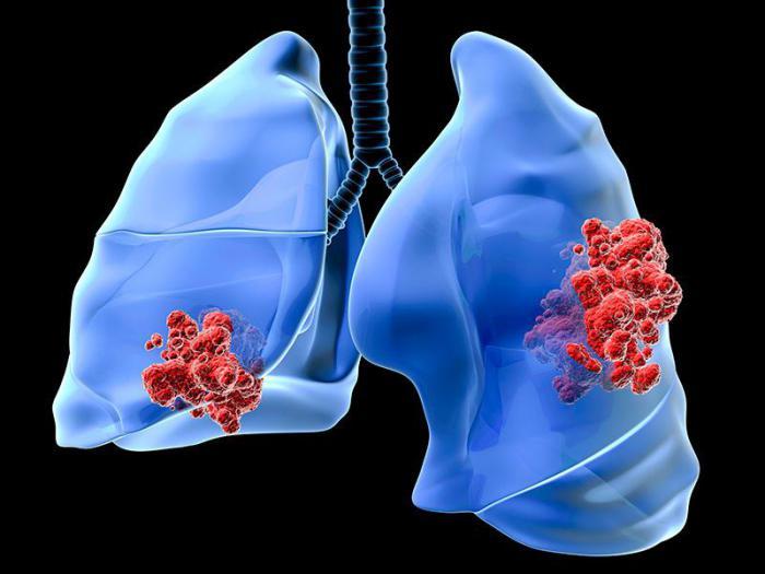 Когда от нас ничего не зависит: две трети всех случаев рака вызваны случайными мутациями