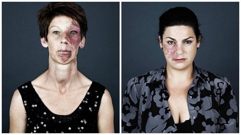 Пламенеющий невус: внешность, скрывающаяся зародимым пятном
