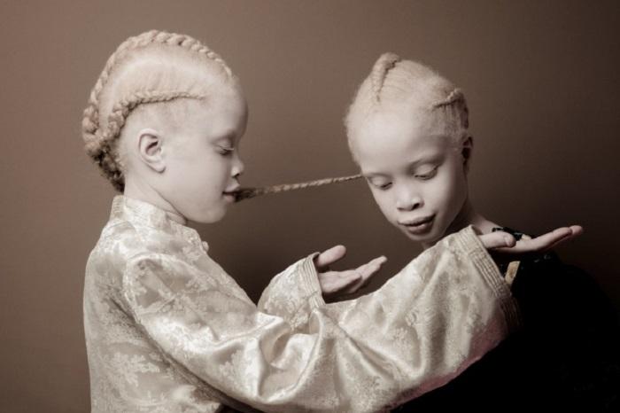Эти близняшки взорвали Интернет своей феноменальной внешностью.