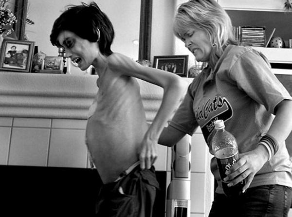 Этому мальчику диагностировали рак. Фотограф наблюдал, как болезнь меняет его...