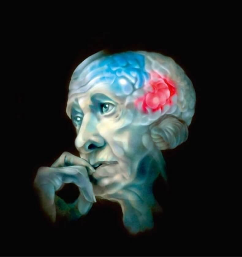 Лиз Бурбо: Психосоматика болезни Альцгеймера
