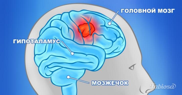 10 симптомов, причиной которых может быть опухоль мозга