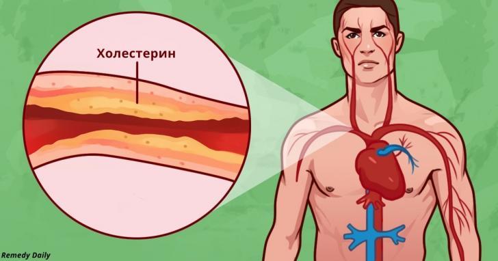 8 удивительных способов борьбы с холестерином и давлением