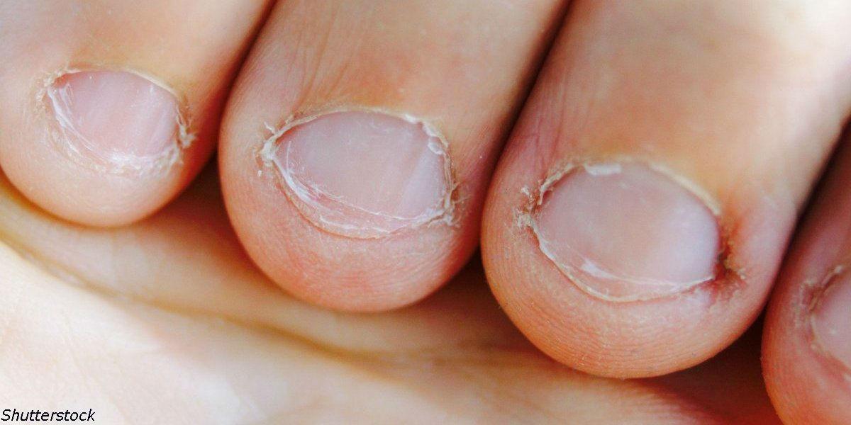 Люди, которые грызут ногти   особенные! Вот почему