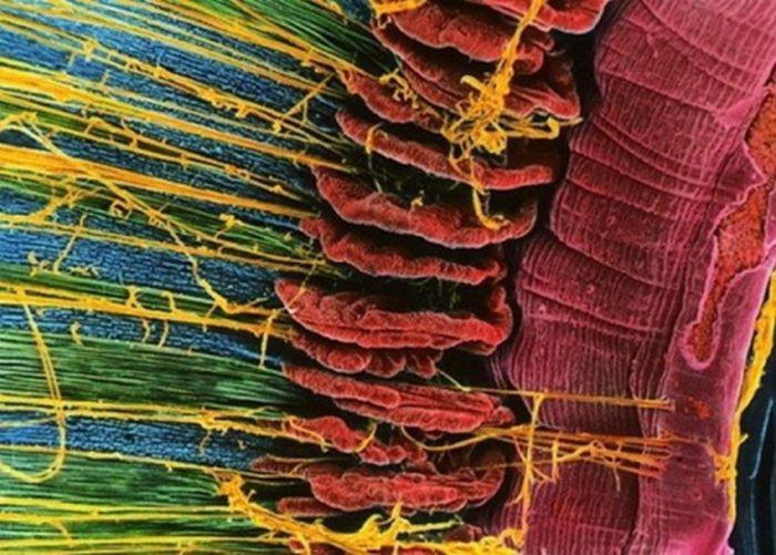 18 фото человеческих органов под микроскопом. Попробуй догадайся, что это!