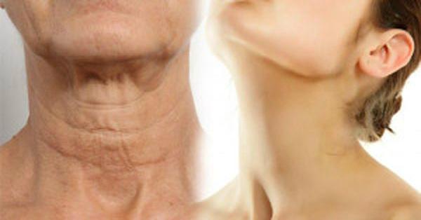 Мощное средство от морщинистой шеи, дряблых рук и рыхлых бедер.