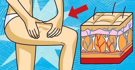 Регулярное употребление этих 4 продуктов, поможет навсегда избавиться от целлюлита!