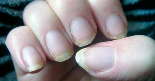 Если у вас ломаются ногти и выпадают волосы, пора избавиться от дефицита этого минерала!
