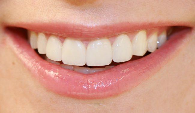 Как избавиться от зубного камня и осветлить пожелтевшую эмаль. Очень хороший…