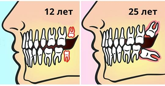 Вот почему зубы мудрости следует удалять до 25 лет!