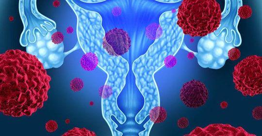 4 скрытых симптома рака яичников, которые игнорируют 78% женщин