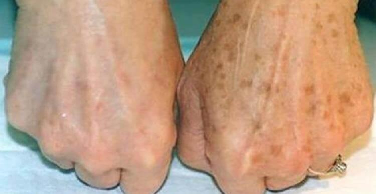 Дерматолог рассказал о единственном способе избавления от коричневых пятен на коже