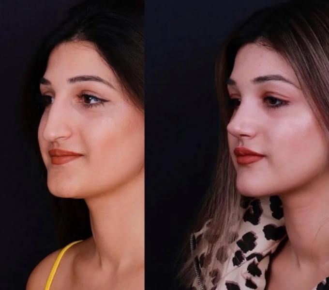 Image result for girl