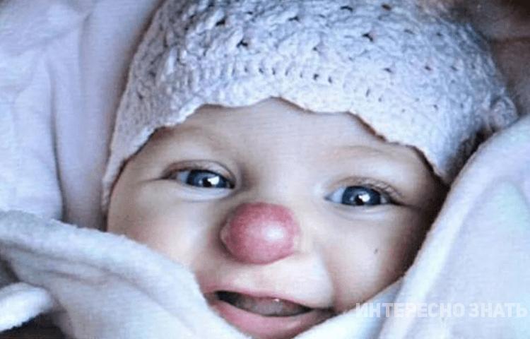 Как спустя 3 года выглядит девочка, которая родилась с «клоунским» носиком