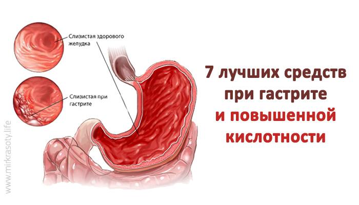 Гастрит и повышенная кислотность желудка: 7 средств, которые помогут!