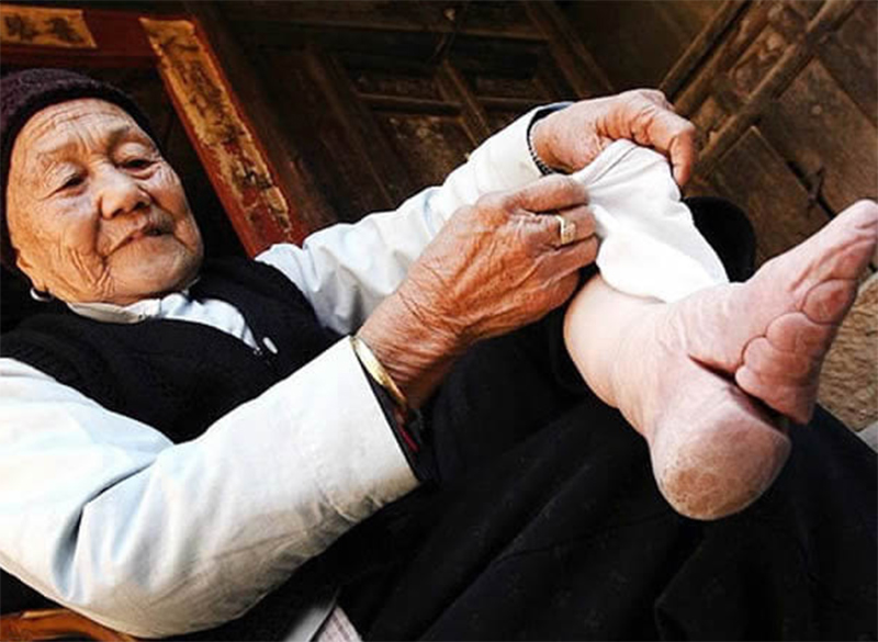 Эта старая китаянка сняла с ног бинты, чтобы показать, к чему приводит эта традиция. Кошмарное зрелище!
