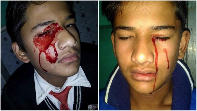 Из за страшной болезни уиндийского мальчика идёт кровь изглаз